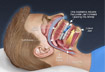 Dental Oral Appliance Therapy