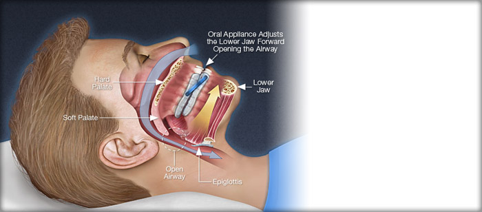 (Dental) Oral Appliance Therapy